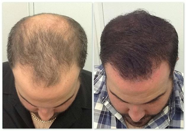 Hair transplantation in 2021